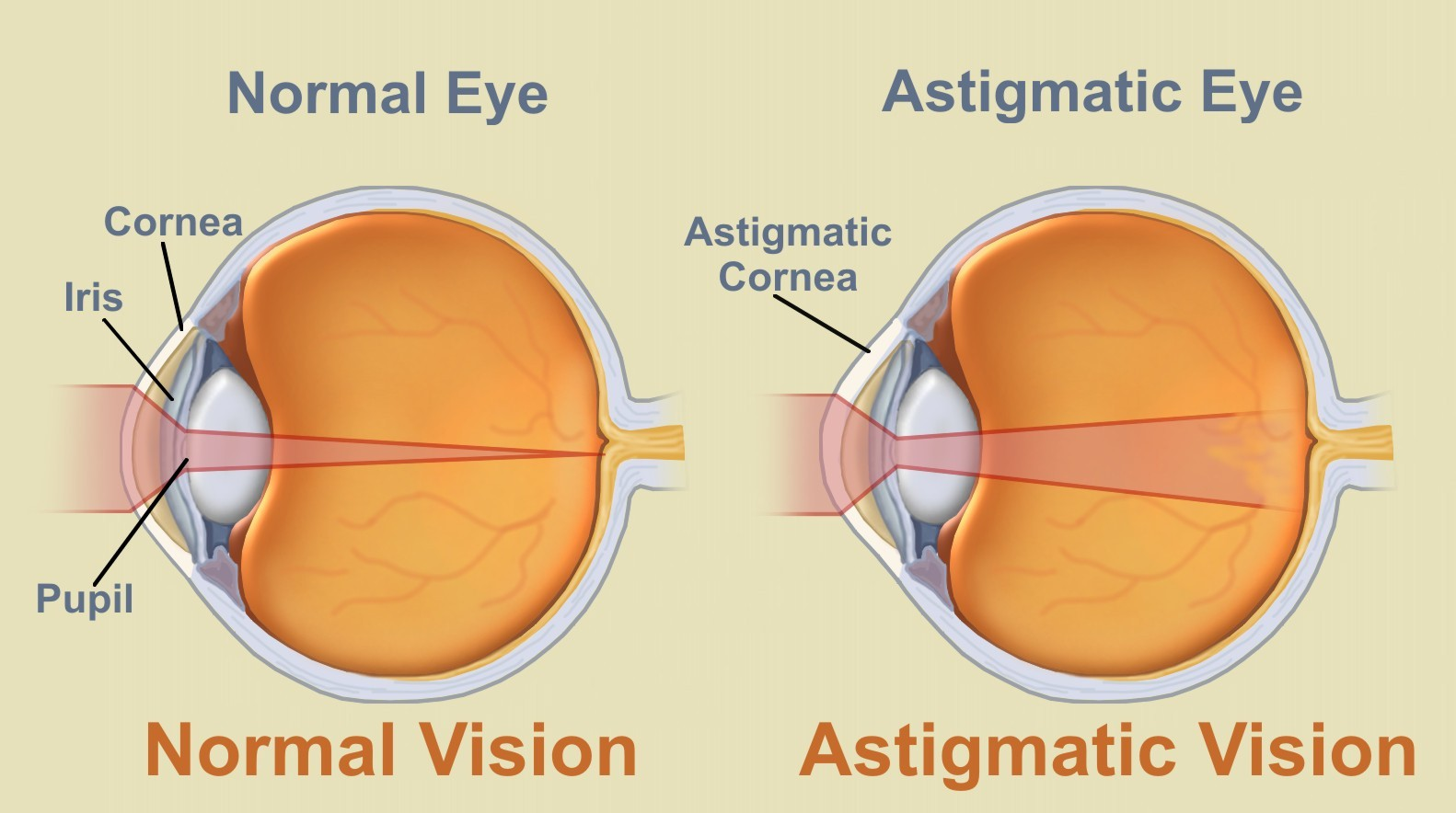 Can Astigmatism Be Corrected Naturally