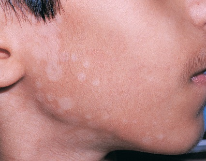 Fungal Skin Infections New Health Guide