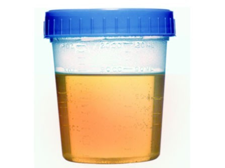 protein in urine | new health guide, Skeleton