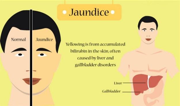 jaundice causes Adult