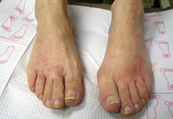 How To Treat Athlete S Foot New Health Guide