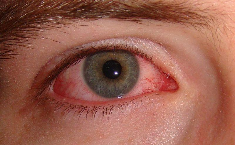 burning eyes new health guide