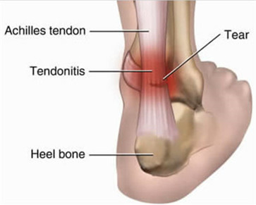 what is tendonitis? | new health guide, Sphenoid