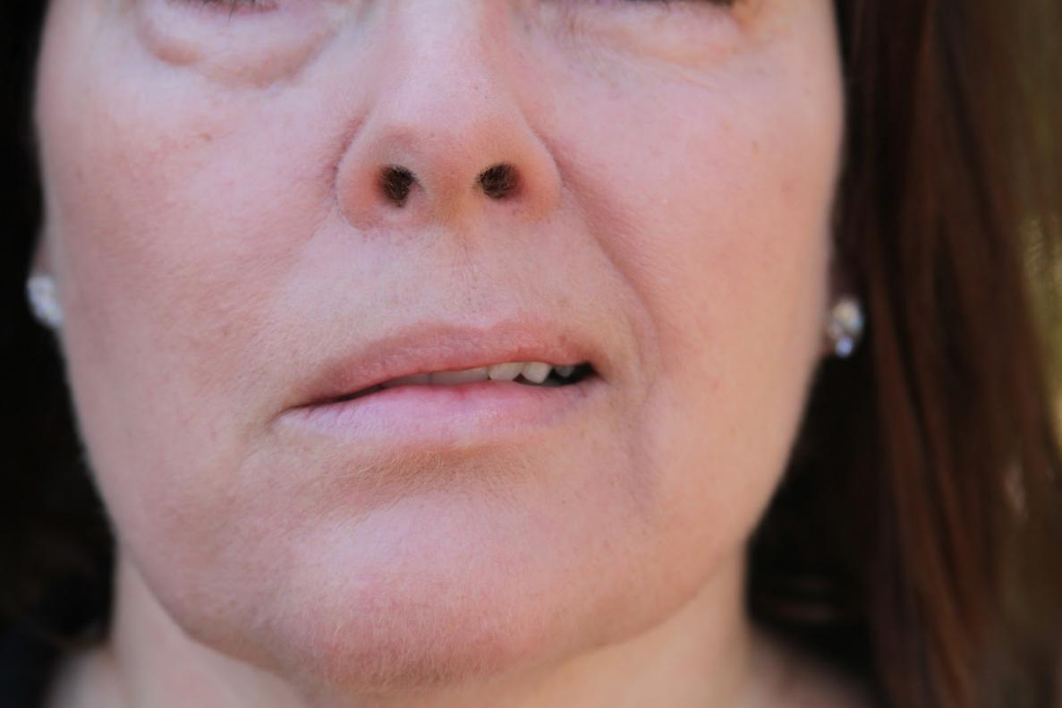 a general guide for recovering from bell's palsy | new health guide, Cephalic Vein