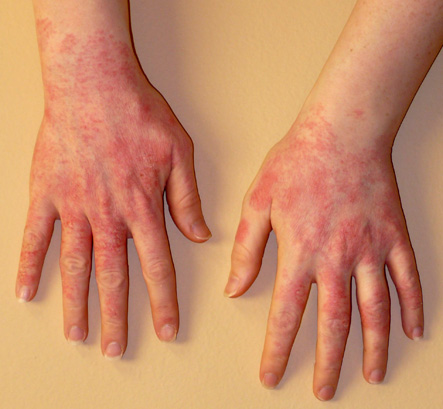 Contact Dermatitis | New Health Guide