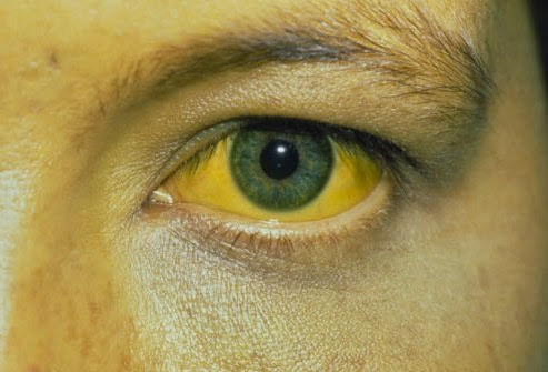 Hepatitis B Patient Eyes Once the Hepatitis B virus