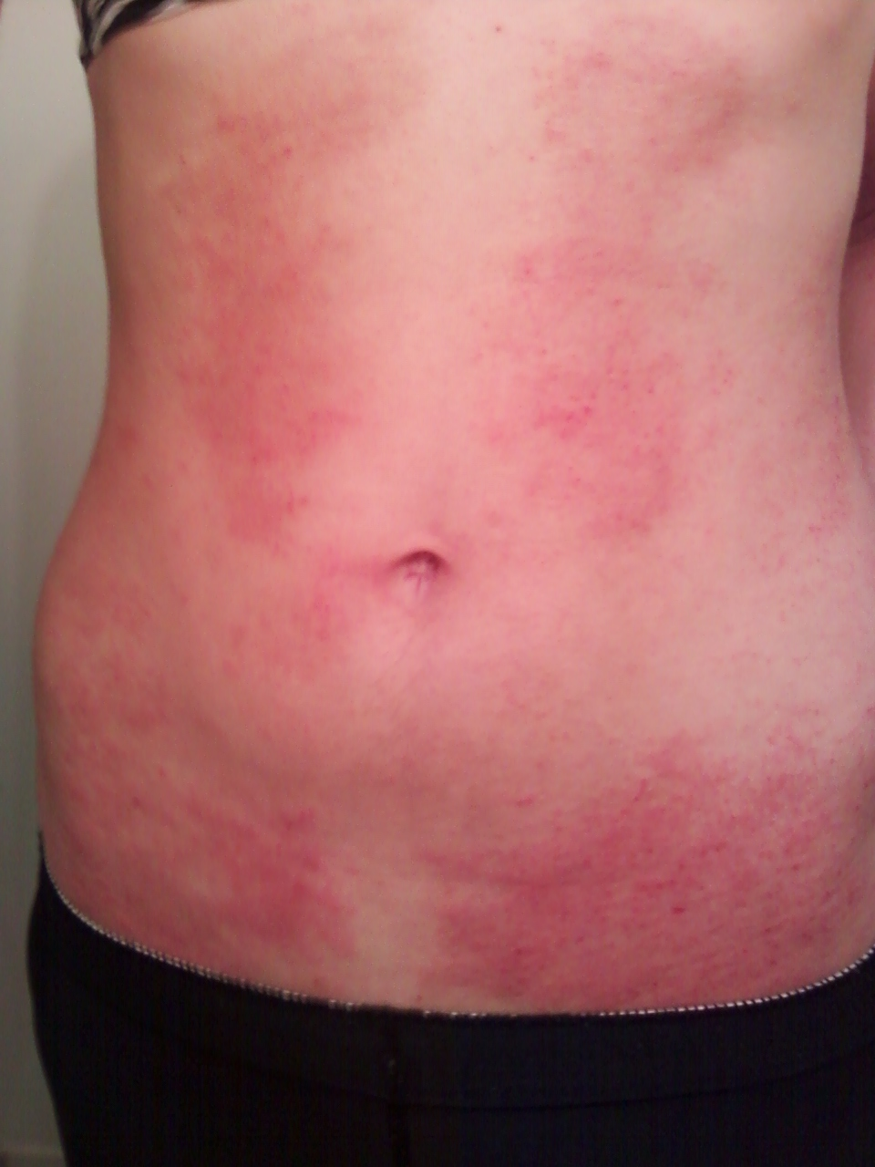 Rash on Stomach | New Health Guide