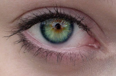 What Is Central Heterochromia With Pictures New