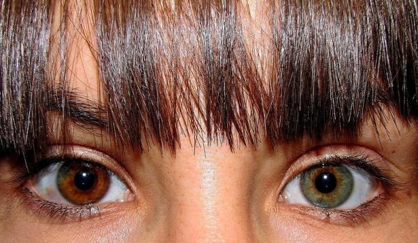 What Is Central Heterochromia with