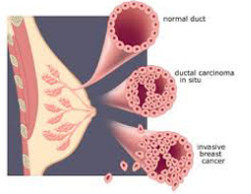 carcinoma invasive Breast cancer