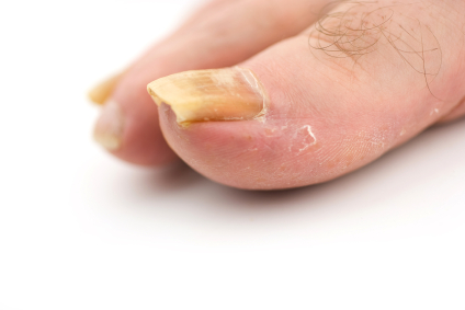 Raised or Lifted Toenail: Causes & Treatments | New Health Guide