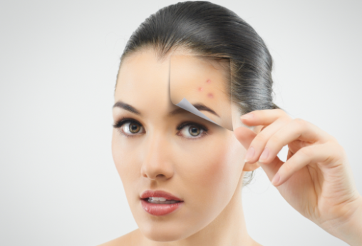 How To Get Rid Of Chicken Pox Scars New Health Guide