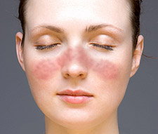 Facial Skin Irritation Chemical Reaction