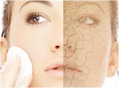 how to avoid dry skin on face