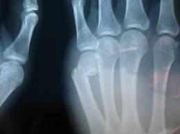 Broken Knuckle   New Health Guide