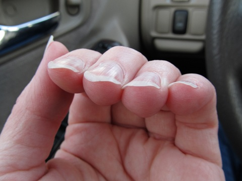 1 Respiratory Health Issues Downward Curved Fingernails