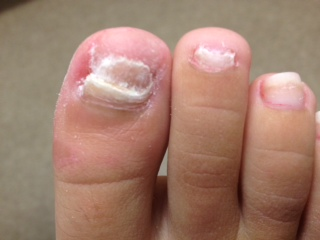 If You Injure Your Toenail It Leaves Open For Fungus To Invade When This Hens Nail May Turn White And Thicken