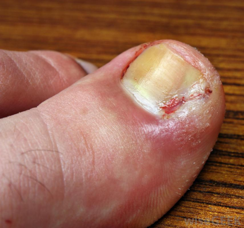 how to treat an open blister on toe
