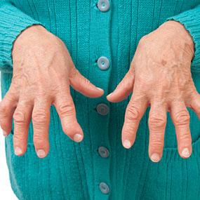 what does seronegative rheumatoid arthritis new