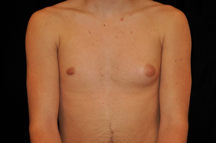 male developing breasts